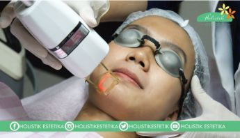 Laser Fractional Resurfacing